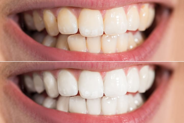 Natural Tooth Whitening - Inexpensive' doesn't start to describe the low cost of natural products you can use to whiten your teeth at home.