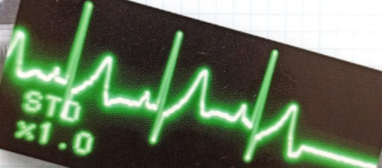 An ECG trace showing the start of a cardiac arrest, which appears on the screen monitor as an unbroken flat line.